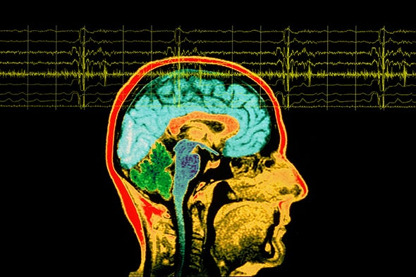 Does Temporal Lobe Epilepsy Influence Personality?