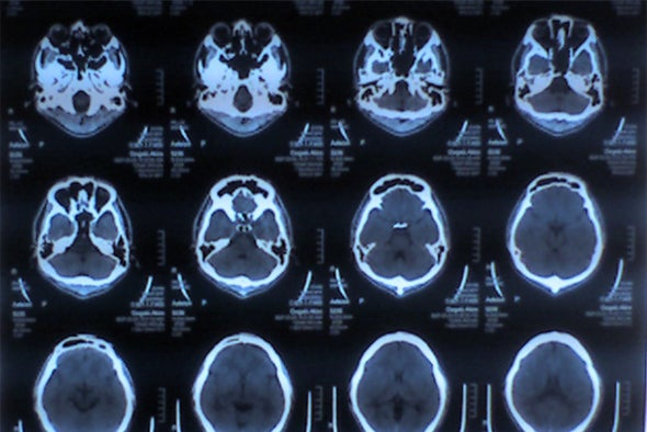 Experimental Cancer Therapy Makes Inroads Treating Brain Cancer