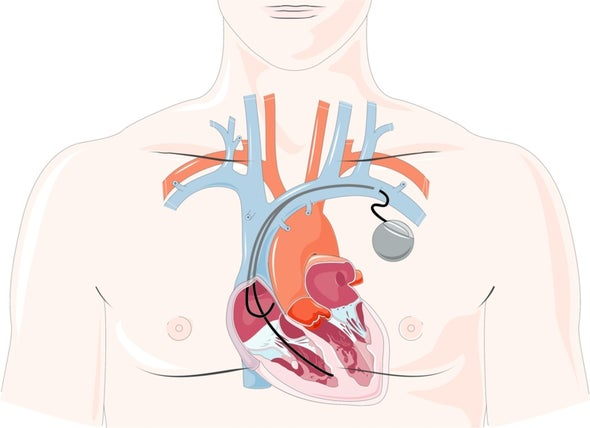 """Heart Cells Transformed into """"Biological Pacemaker"""""""
