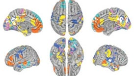 Personality Traits Correlate with Brain Activity