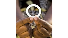 Vaginal Ring Offers Hope in HIV Prevention