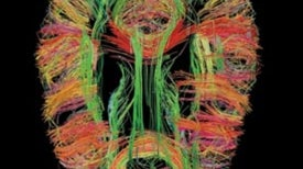 10 New Ways to Peer Inside the Human Mind