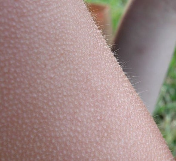 "Why do humans get ""goosebumps"" when they are cold, or under other circumstances?"