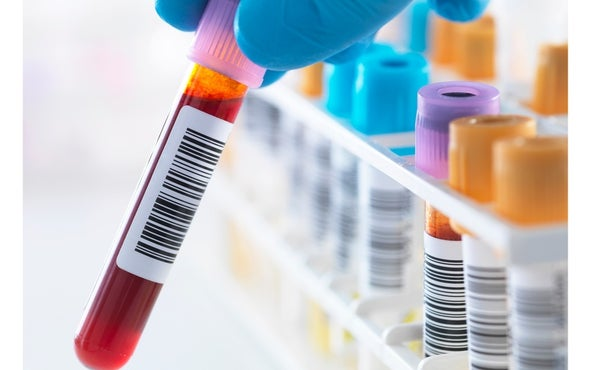 A Big Step toward a Blood Test for Alzheimer's