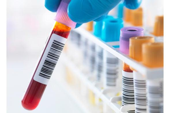 A Big Step toward a Blood Test for Alzheimer's