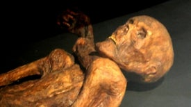 Famous Ancient Iceman Had Familiar Stomach Infection
