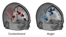 Can You Tell Someone's Emotional State from an MRI?