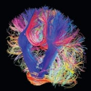 A Countdown to a Digital Simulation of Every Last Neuron in the Human Brain