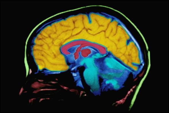 Tech's Brain Effect: It's Complicated