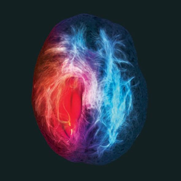 Beauty in a Brain Tumor?