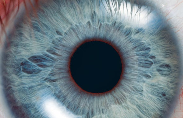 Eye-Tracking Test Enters into the Running for an Alzheimer's Screen