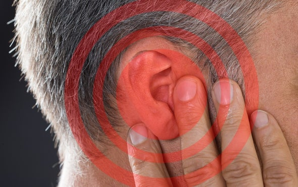 Gene Editing Shows Promise for Alleviating Hearing Loss