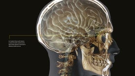 Building a Brain Implant for Smell