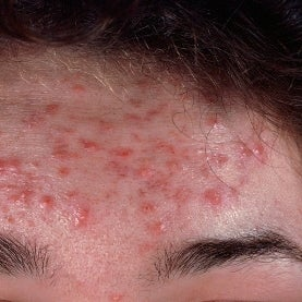 Does 1 Type of Bacteria Cause Acne?: Zit All Depends