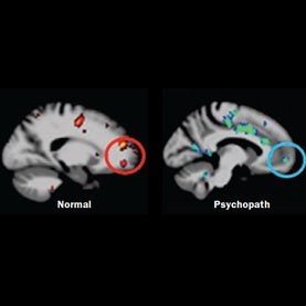 Psychopaths Might Have an Impaired Empathy Circuit