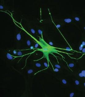 Marijuana Reveals Memory Mechanism