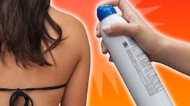 Fact or Fiction? Combustibility of Spray-On Sunscreens Poses Risk of Skin Burns