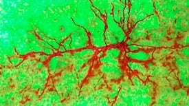 The Adult Brain Does Grow New Neurons After All, Study Says