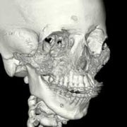 Stem Cells from Fat Used to Grow Teen's Missing Facial Bones