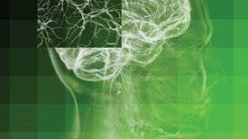 Neural Stem Cell Transplants May One Day Help Parkinson's Patients, Others