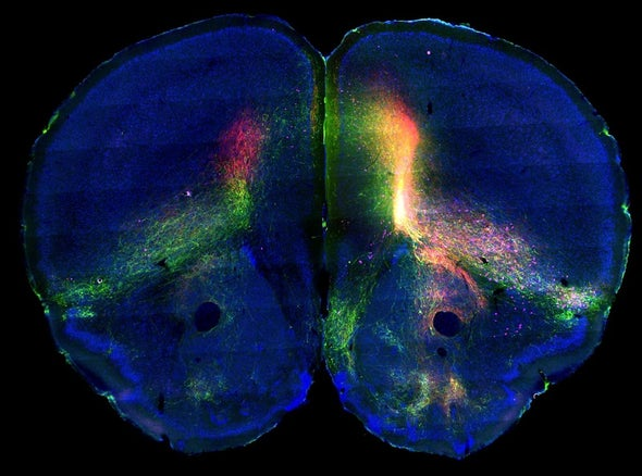 Fluorescent Injections Used to Create Comprehensive Map of Mouse Brain