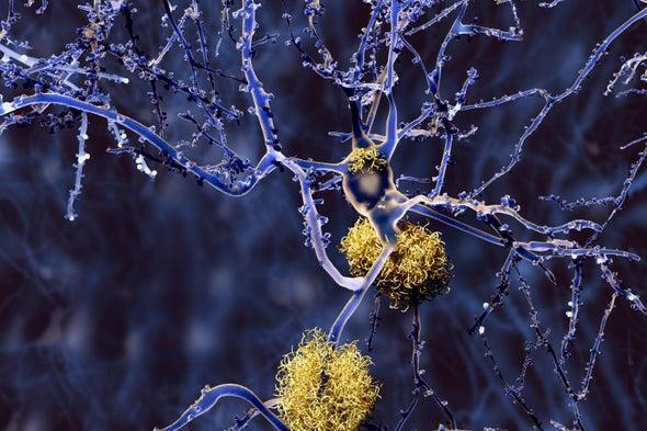 Landmark Alzheimer's Drug Approval Confounds Research Community