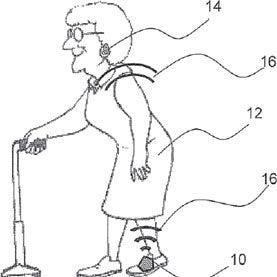Could a Simple Ankle Sensor Help with Parkinson's Symptoms?
