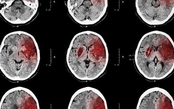 Targeting Inflammation May Protect and Restore the Brain after Stroke
