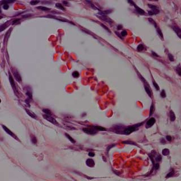 Researchers Design Patches of Cells to Repair Damaged Hearts