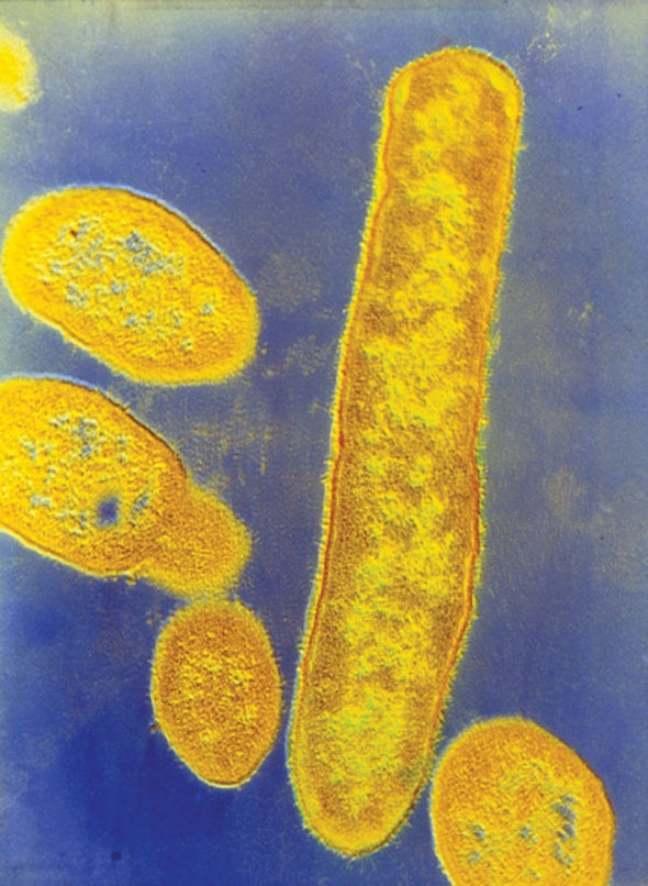 Gut Bacteria May Play a Role in Autism