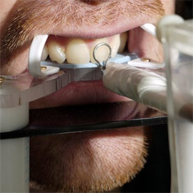 Dose Detectives: Device Analyzes Radiation Exposure through Teeth and Nails [Slide Show]