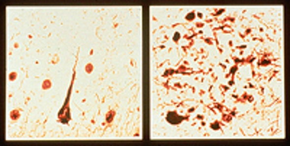 Antibody Therapy Halts Early-Stage Alzheimer's in Mice