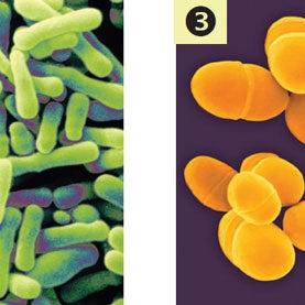 Gut Bacteria May Exacerbate Depression