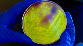 """How Hospitals, Nursing Homes Keep Lethal """"Superbug"""" Outbreaks Secret"""