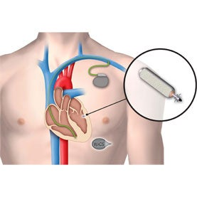 Easy to Beat: Next-Gen Cardiac Care Includes Wireless Pacemakers