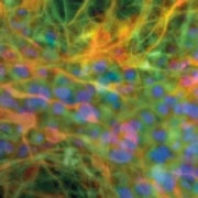 Your Inner Healers: Progress in Induced Pluripotent Stem Cells, Made Interactive