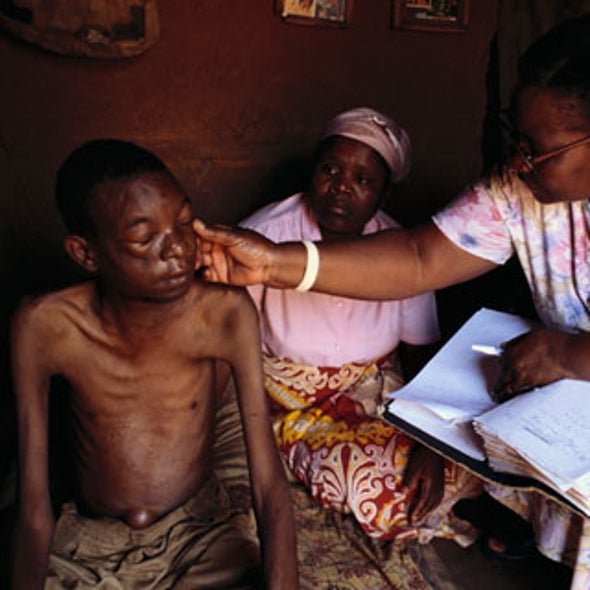 Tuberculosis conspires with HIV to make the disease worse