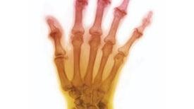 Optical Illusion Relieves Arthritis Pain
