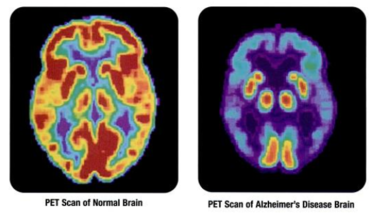 Genetic Risk for Alzheimer's Ignored for Decades