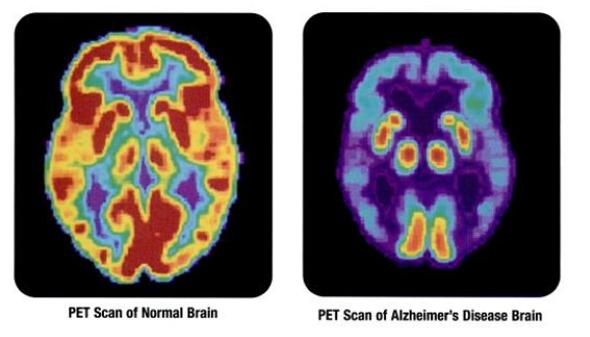 Genetic Risk for Alzheimer's Ignored for Decades