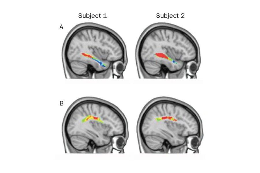Our brains are hardwired for language -- ScienceDaily