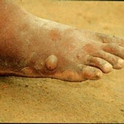 What is Guinea Worm Disease?