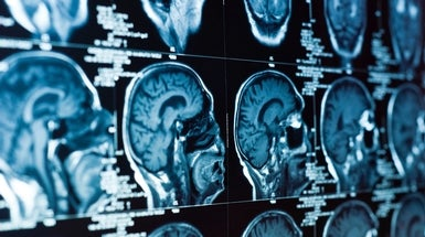 Stroke Study Sparks Call for Revamping Emergency Care Plan