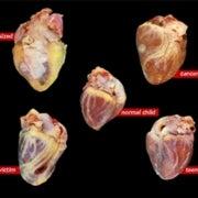 A Pathologist Reveals the Secrets of the Heart [Video]
