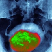 Men with Early Prostate Cancer Can Safely Opt Out of Treatment, Finds Landmark Study