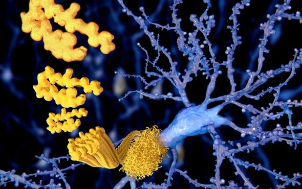 Could Medical Procedures Transmit Alzheimer's?