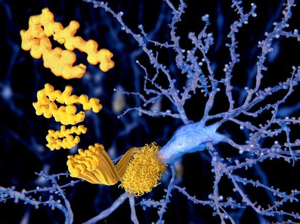 Could Medical Procedures Transmit Alzheimer's?