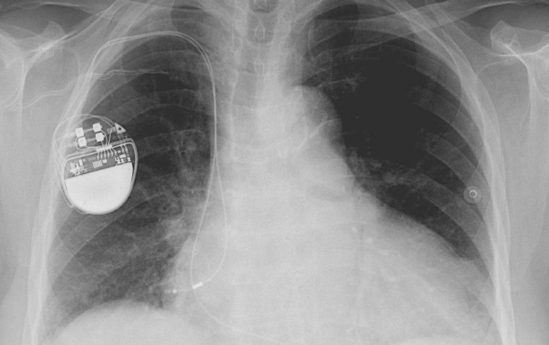 New Rules for Avoiding Cyber Bugs in Medical Devices