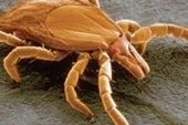 Lyme Disease May Linger for 1 in 5 Because of