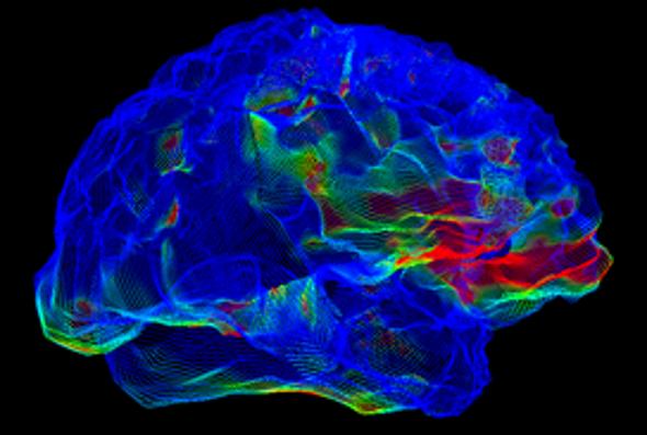 Why Alzheimer's Drugs Keep Failing